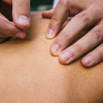 dry needling by physiotherapist